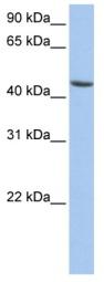 Western blot - ALDH3B1 antibody (ab84961)