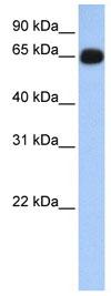 Western blot - Alas1 antibody (ab84962)