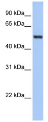 Western blot - Glutathione Reductase antibody (ab84963)
