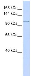 Western blot - Calcium Pump PMCA3 ATPase antibody (ab84965)