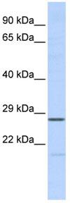 Western blot - MED6 antibody (ab84968)