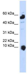 Western blot - C1ORF151 antibody (ab84969)
