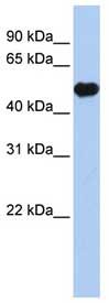 Western blot - Kir2.2 antibody (ab84972)