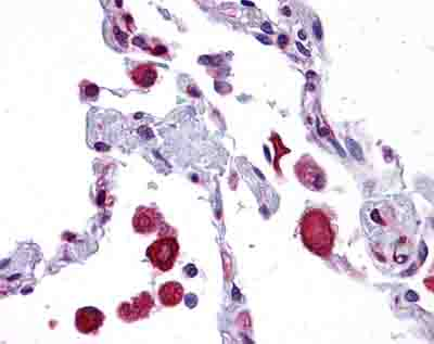 Immunohistochemistry (Formalin/PFA-fixed paraffin-embedded sections) - Anti-EIF2AK1 antibody (ab84980)