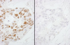 Immunohistochemistry (Formalin/PFA-fixed paraffin-embedded sections) - RNA polymerase II (phospho S2) antibody (ab84988)