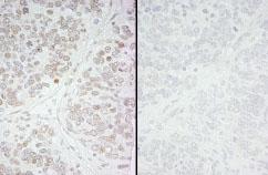 Immunohistochemistry (Formalin/PFA-fixed paraffin-embedded sections) - KMT6 / EZH2 (phospho S21) antibody (ab84989)