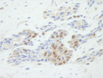 Immunohistochemistry (Formalin/PFA-fixed paraffin-embedded sections) - 53BP2/ASPP2 antibody (ab84996)