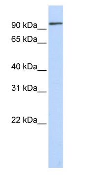 Western blot - MUC3B antibody (ab85006)