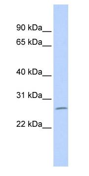 Western blot - ZNF575 antibody (ab85011)