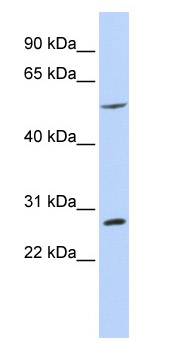 Western blot - BTBD2 antibody (ab85012)