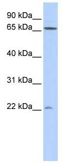 Western blot - DIRAS1 antibody (ab85018)