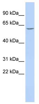 Western blot - Carboxylesterase 7 antibody (ab85019)