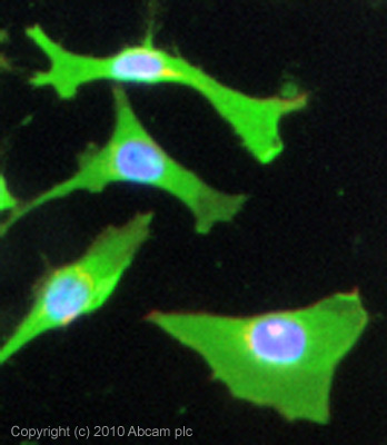 Immunocytochemistry/ Immunofluorescence - Monocarboxylic acid transporter 1 antibody (ab85021)