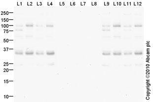 Western blot - p27 KIP 1 (phospho T157) antibody (ab85047)