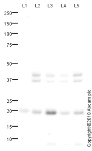 Western blot - Dihydrofolate reductase (DHFR) antibody (ab85056)