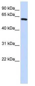 Western blot - SPAG8 antibody (ab85095)