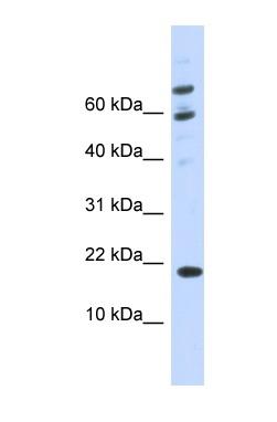 Western blot - C21orf87 antibody (ab85098)