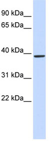 Western blot - QPCT antibody (ab85183)