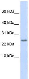 Western blot - CST9 antibody (ab85184)