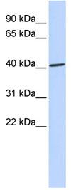 Western blot - ZNF696 antibody (ab85185)