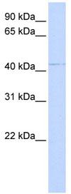 Western blot - ornithine aminotransferase antibody (ab85186)