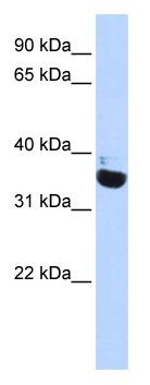 Western blot - OR13C5 antibody (ab85189)