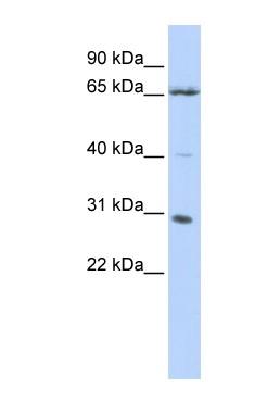 Western blot - Grainyhead-like protein 1 homolog antibody (ab85193)