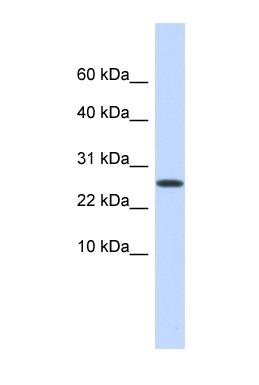 Western blot - Podoplanin / gp36 antibody (ab85194)