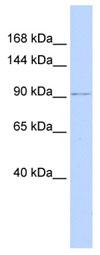 Western blot - NDST3 antibody (ab85196)