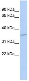 Western blot - SULT1C4 antibody (ab85198)