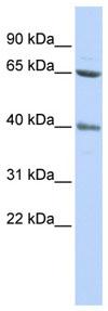 Western blot - ZNF192 antibody (ab85199)
