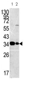 Western blot - MPST antibody - C-terminal (ab85211)