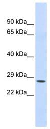 Western blot - Chymotrypsin antibody (ab85218)