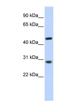 Western blot - Pygopus 2 antibody (ab85219)