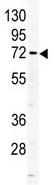 Western blot - ALS antibody (ab85222)