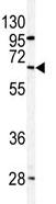 Western blot - PPP2R3B antibody - N-terminal (ab85223)