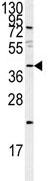 Western blot - PEDF antibody (ab85232)