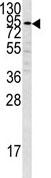 Western blot - Plasminogen antibody - C-terminal (ab85234)