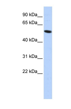 Western blot - ZNF572 antibody (ab85272)