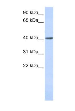 Western blot - SMYD3 antibody (ab85277)
