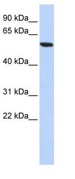 Western blot - ZNF248 antibody (ab85291)