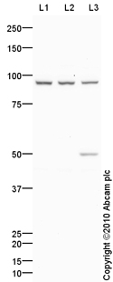 Western blot - PDE6 alpha antibody (ab85308)