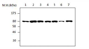 Western blot - Radixin antibody [AF1H1] (ab85323)