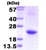 SDS-PAGE - IL32 protein (His tag) (ab85327)