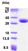 SDS-PAGE - CBR1 protein (Human) (ab85336)