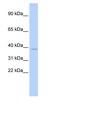 Western blot - TSFM antibody (ab85361)