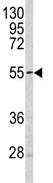 Western blot - SESN1 antibody - C-terminal (ab85376)