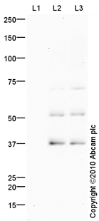 Western blot - c-Myc (phospho T58) antibody (ab85380)