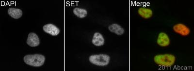 Immunocytochemistry/ Immunofluorescence - SET antibody (ab85389)