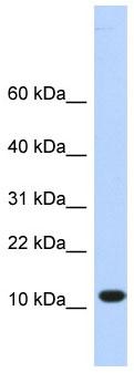 Western blot - C10orf57 antibody (ab85395)